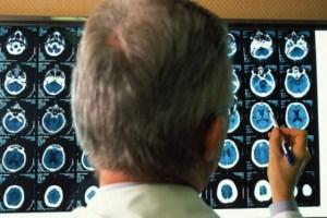El Covid-19 y el Alzheimer tendrían un factor de riesgo en común