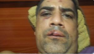 En fotos: Padre de periodista en Caracas fue agredido por la GNB mientras hacía una cola por gasolina