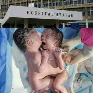 EN IMÁGENES: Nacieron niñas siamesas en Ciudad Guayana