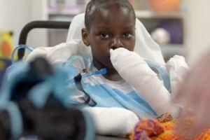 La desgarradora historia de un niño en EEUU que perdió manos y piernas luego de contraer Covid-19