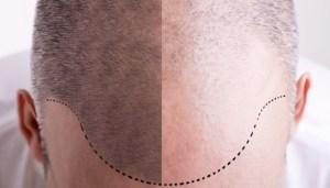 Casos graves de coronavirus son más probables en hombres con calvicie, advirtió estudio